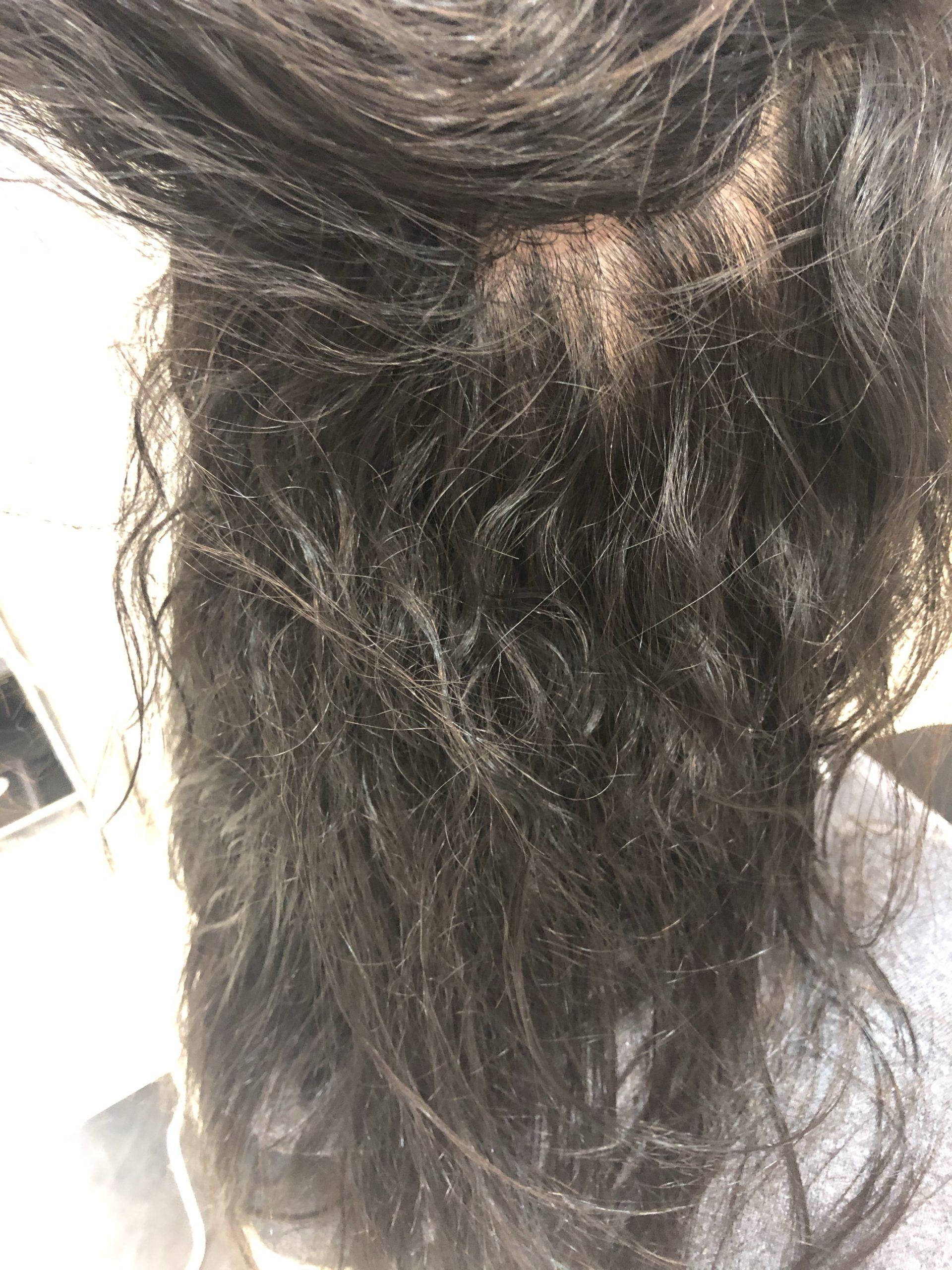 難度Eの強いクセ毛=波状毛さん